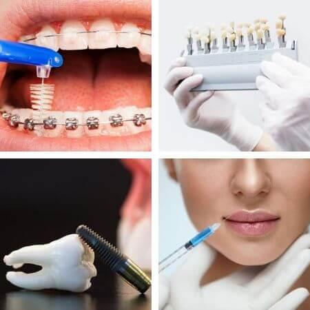 Tratamientos mas comunes de los dentistas